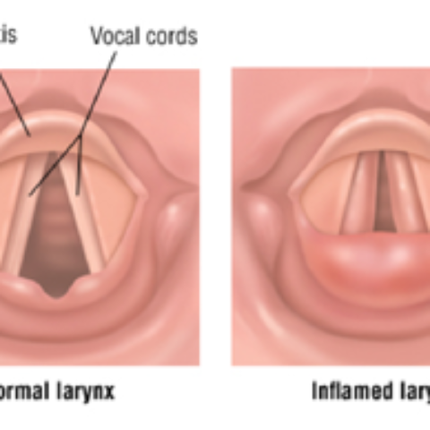 pictures of the larynx and inflamed vocal folds with laryngitis
